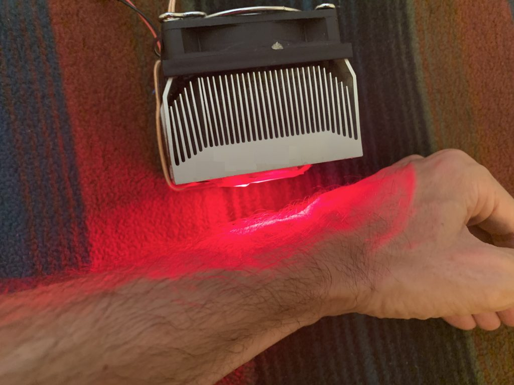 Light Therapy Example of Wrist