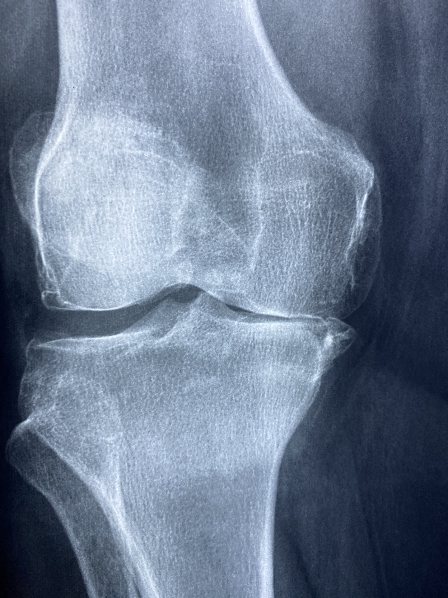 Osteoarthritis: A Brief Review of Integrative Treatment